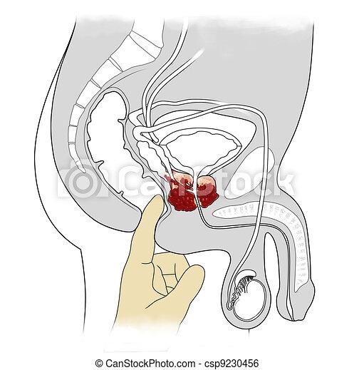 prostate cancer - csp9230456