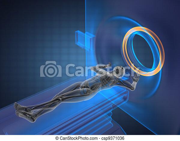 MRI examination - csp9371036