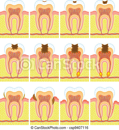 Internal structure of tooth - csp9407116