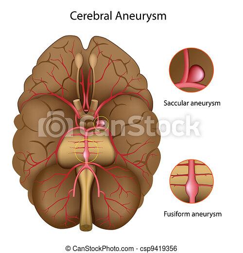 Cerebral aneurysm, eps10 - csp9419356