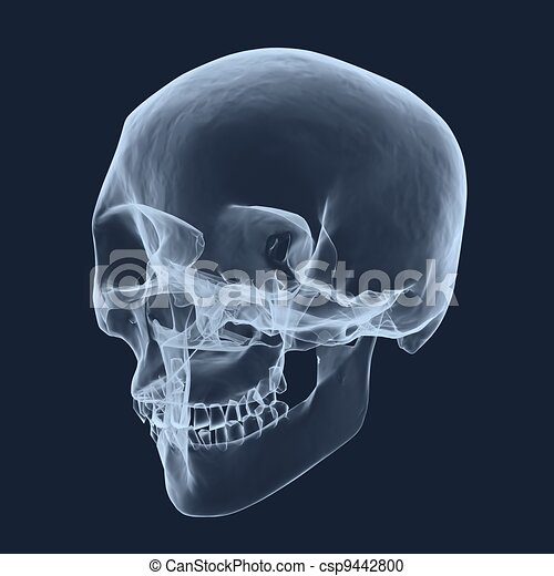 cabeza, radiografía, humano, cráneo - csp9442800