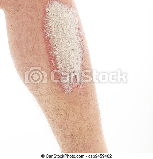 Psoriasis or psoriasis on lower legs - close up - csp9459402