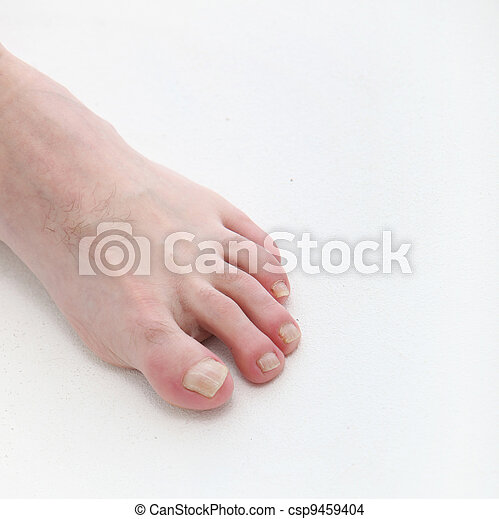 Psoriasis of the toenails with text space - csp9459404