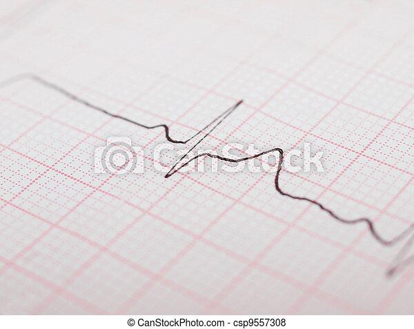ecg graph, electrocardiogram ekg - csp9557308
