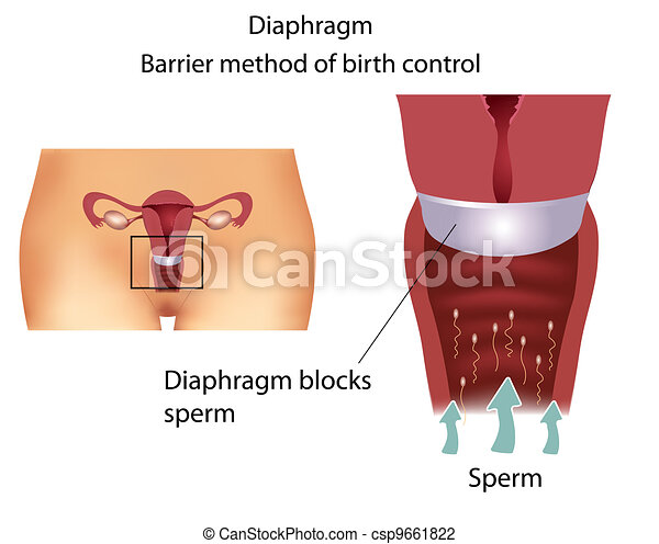 contraceptive method- Diaphragm - csp9661822