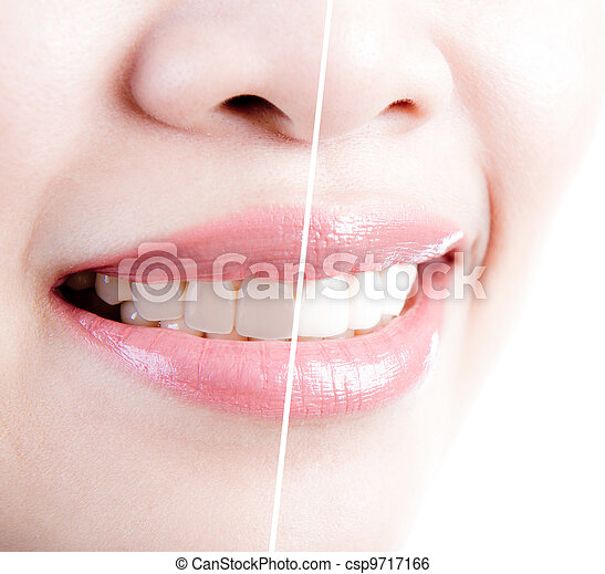 woman teeth before and after whitening. Over white background - csp9717166