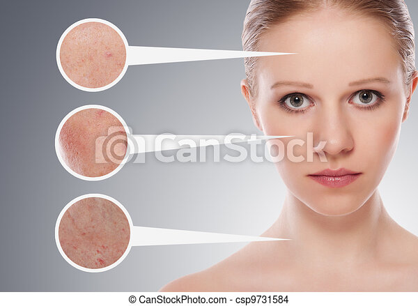 concept skincare. Skin of beauty young woman before and after the procedure on a gray background - csp9731584