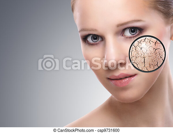 concept of cosmetic effects, treatment and skin care.  face of young woman with dry skin - csp9731600