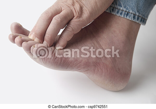 man with itchy toes - csp9742551