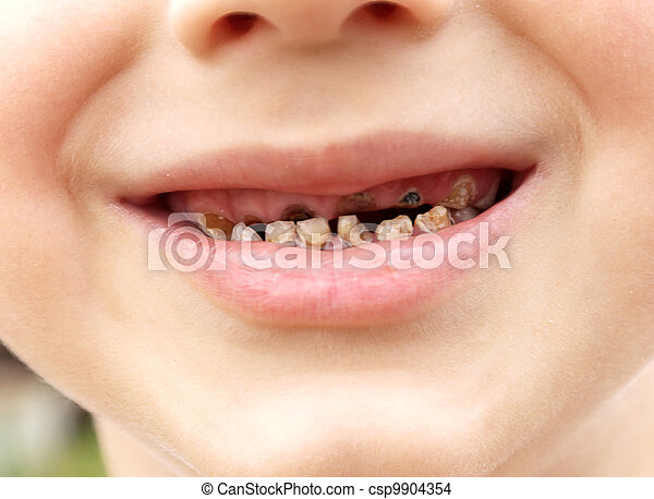 Calf's Teeth decay Toothache because of too many sugar in food Dental Medicine - csp9904354