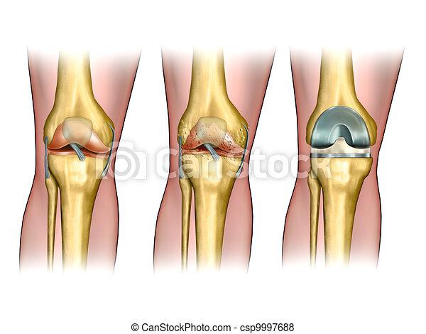 Knee replacement - csp9997688