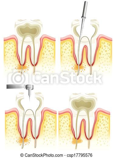 Proceso de endodoncia - csp17795576