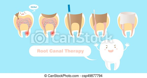 canal, terapia, raiz, dente - csp49877794
