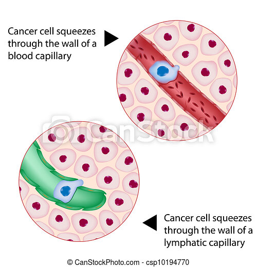 Cancer cell squeezes through vessel - csp10194770