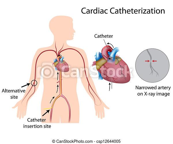 Cardiac catheterization, eps10 - csp12644005