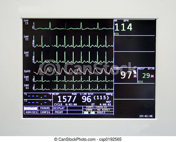 Cardiac Monitor - csp0192565