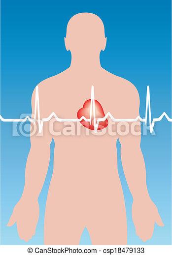 cardiaco, arrhythmia - csp18479133