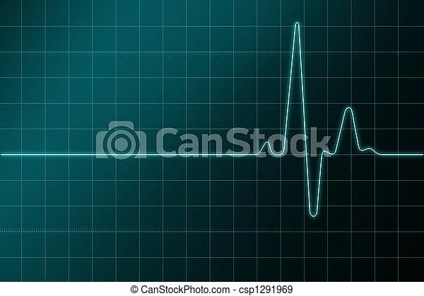 cardiogram - csp1291969