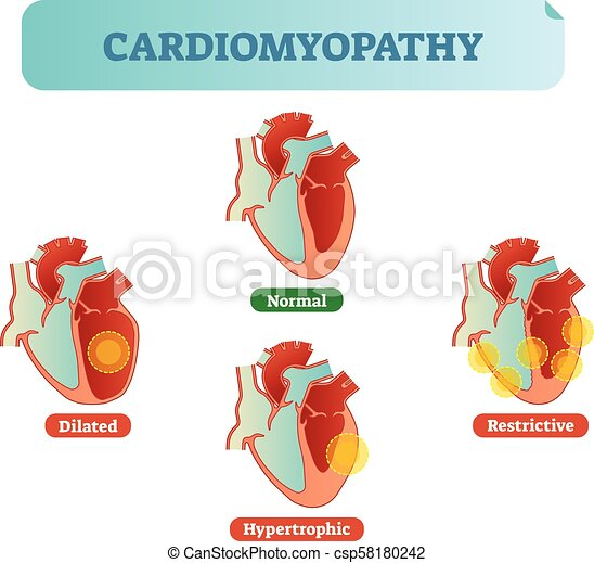Cardiomyopathy medical disorders cross section diagram, vector illustration examples with normal, dilated, hypertrophic and restrictive conditions. - csp58180242