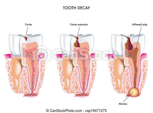 Desintegración de dientes - csp19471273