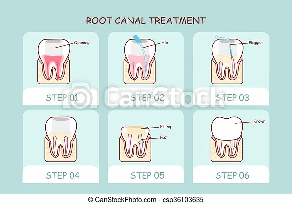 cartoon tooth root canal treatment  - csp36103635
