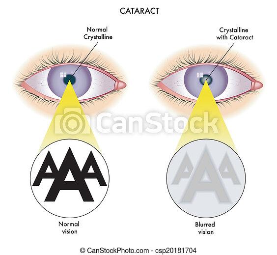 catarata - csp20181704