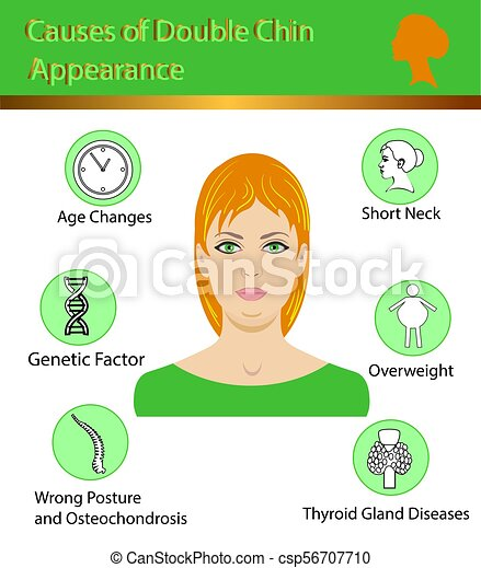Causes of double chin, vector illustration diagram - csp56707710