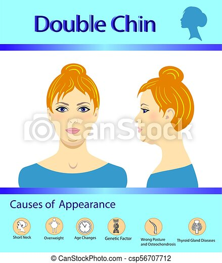 Causes of double chin, vector illustration diagram - csp56707712