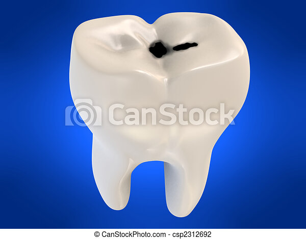 cavity tooth decay - csp2312692