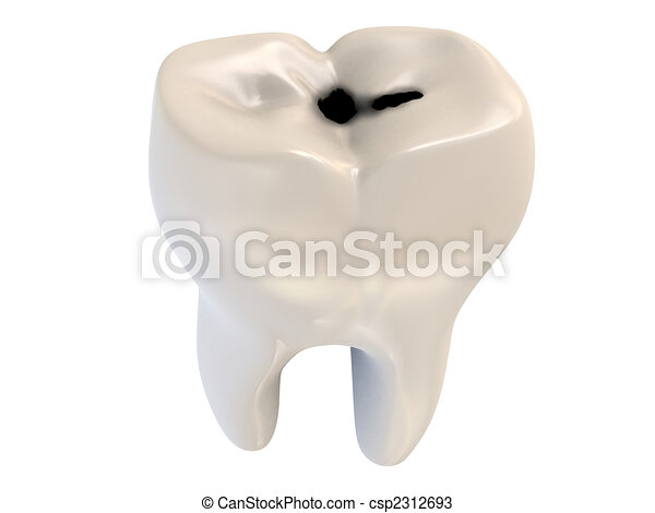 cavity tooth decay - csp2312693