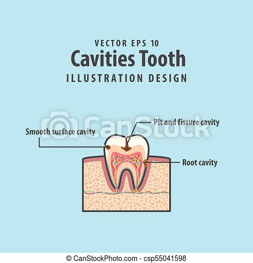 Cavitys tooth cross section structure inside tooth diagram eps cavitys tooth cross section structure inside tooth diagram and chart illustration vector on blue ccuart Choice Image