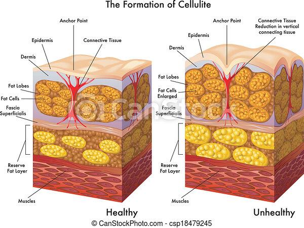 Celulitis - csp18479245