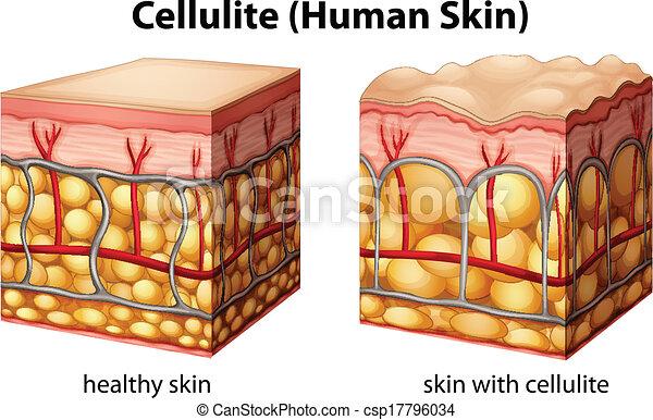 cellulite - csp17796034