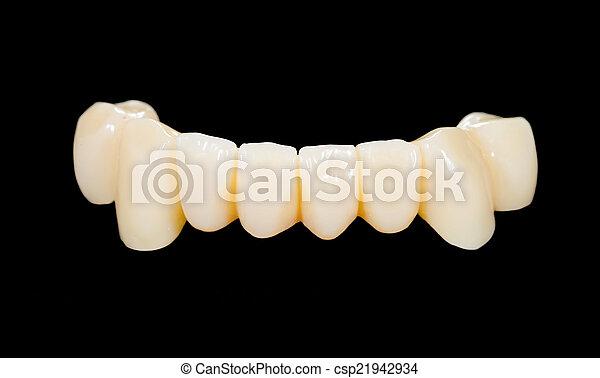 Ceramic bridge - csp21942934