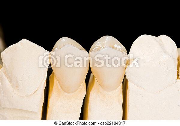 Ceramic crowns - csp22104317