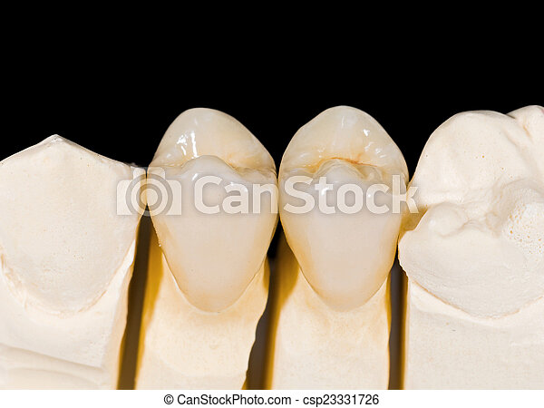 Ceramic crowns - csp23331726