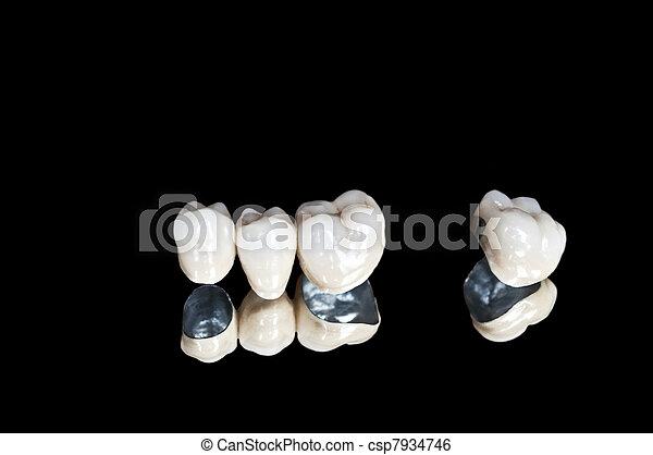 Ceramic dental crowns - csp7934746