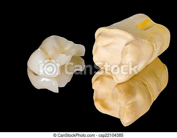 Ceramic inlay - csp22104385