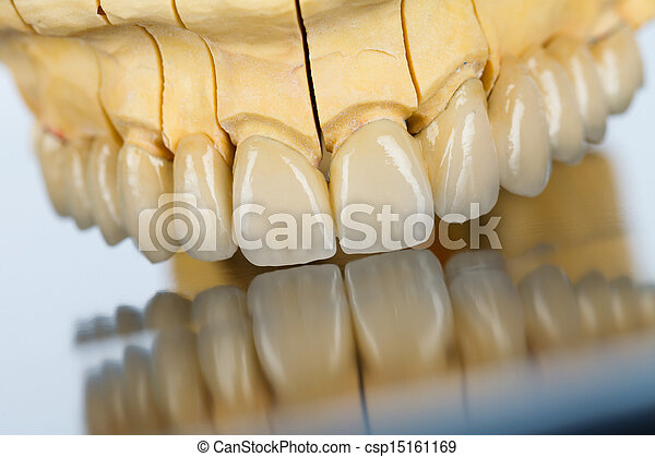Ceramic teeth - dental bridge - csp15161169