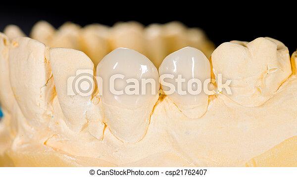 Ceramic veneers - csp21762407