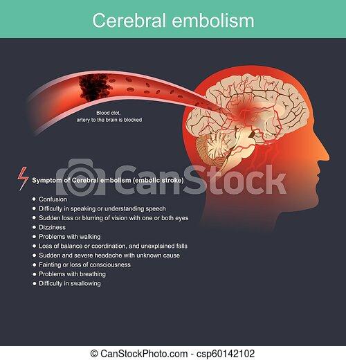 Cerebral embolism - csp60142102