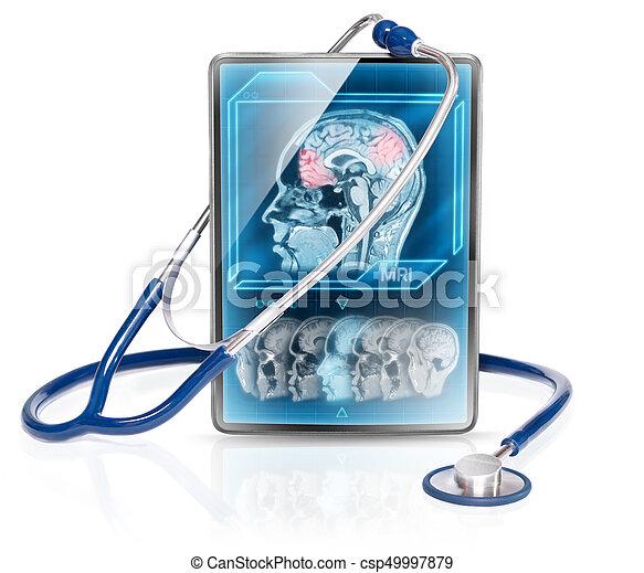 Cerebral scan - csp49997879