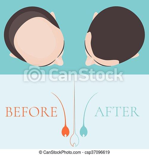 chauve, après, cheveux, traitement, homme, avant - csp37096619