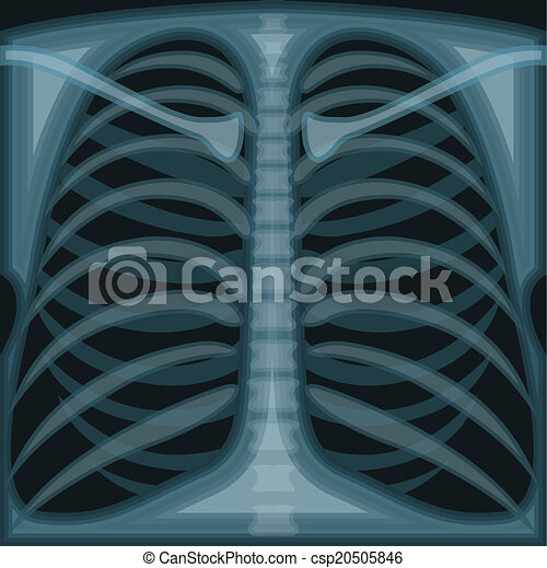 chest x ray vector illustration clip art eps eps vector search rh canstockphoto com x ray clipart images x ray clipart black and white