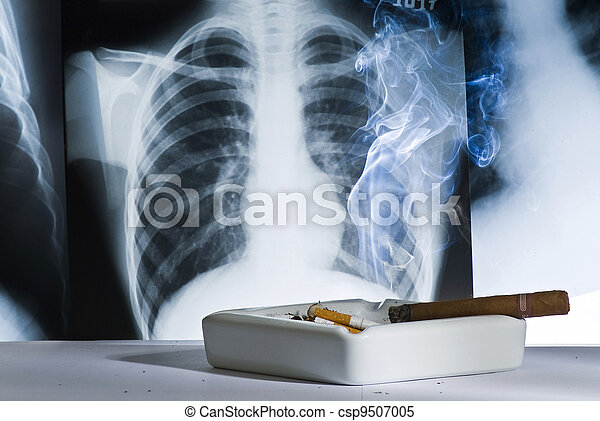 Chest x-ray shows the damage caused by smoking - csp9507005