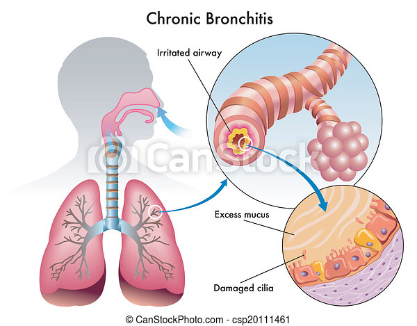 Chronic Bronchitis Medical Illustration Of The Effects Of