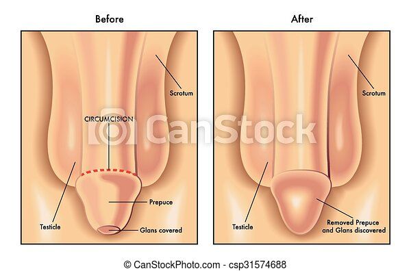 Are penis surgery before after remarkable, rather