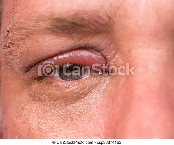 Close up of infected eye - csp33874163