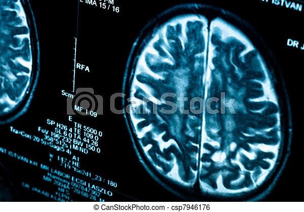 Closeup of a computer axial tomography scan (CAT scan) - csp7946176
