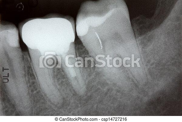 Closeup photo of teeth x-ray - csp14727216